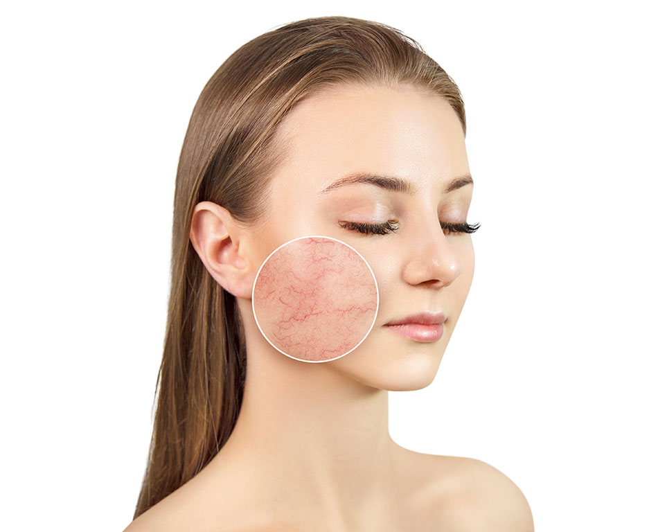 Don't give rosacea a chance