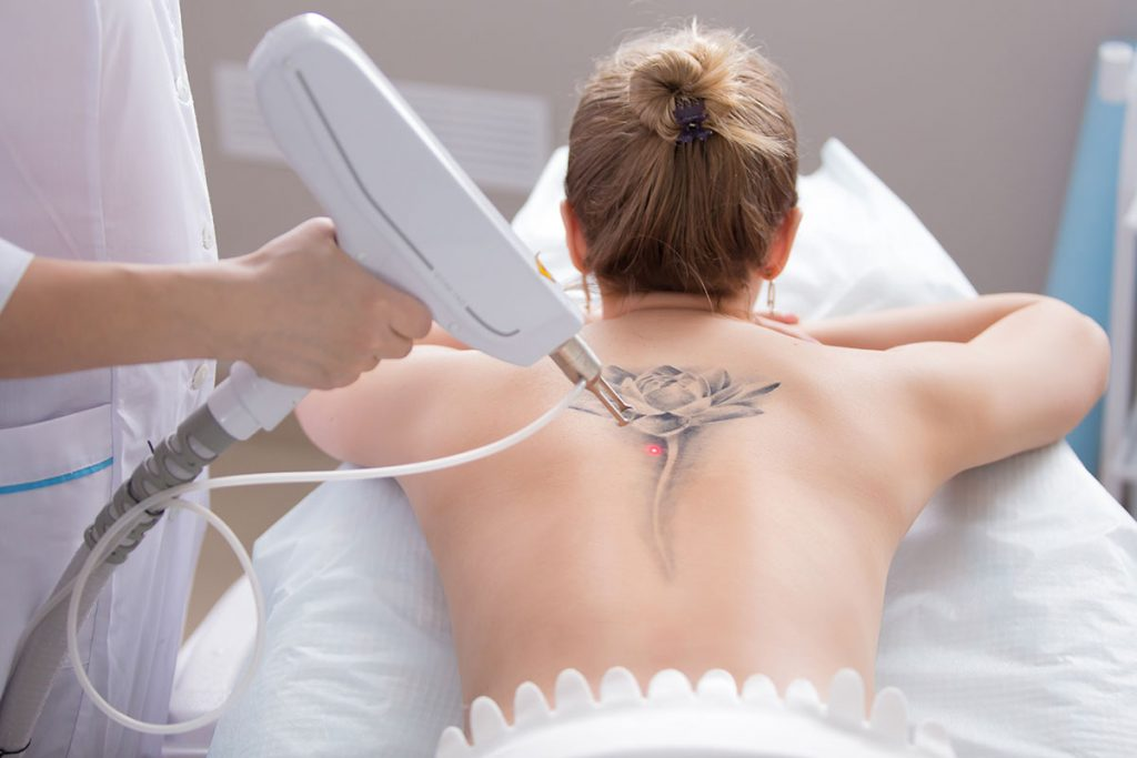 Tattoo removal at Skin & Aesthetic in Frankfurt