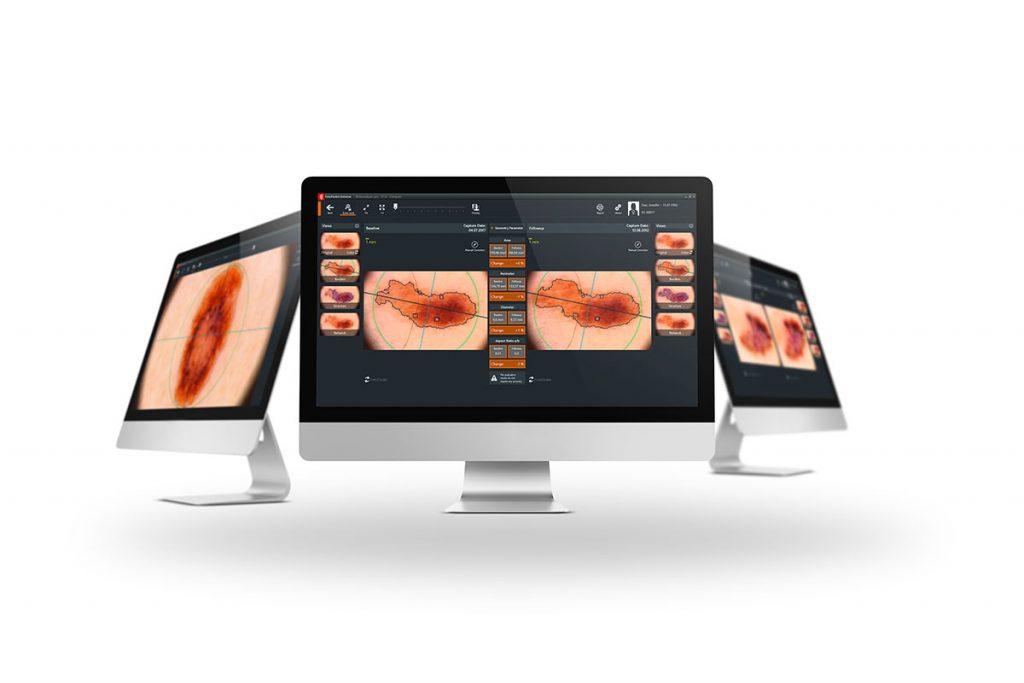 Skin cancer screening with Fotofinder